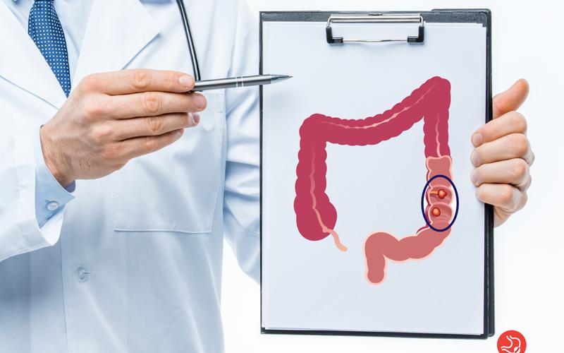 Câncer de Intestino: conheça os fatores de risco, sintomas, prevenção e tratamento