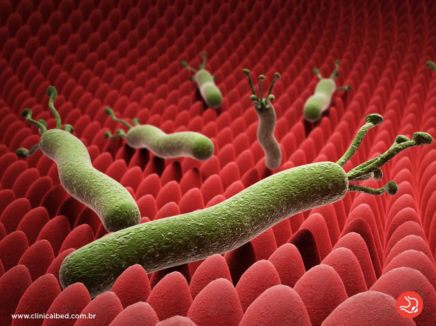 Helicobacter pylori (H. pylori): Sintomas, diagnóstico e tratamento